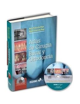 Atlas de cirugía bucal y...